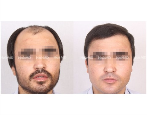 5Hair-Transplant-male-before-after-5000-hair-grafts