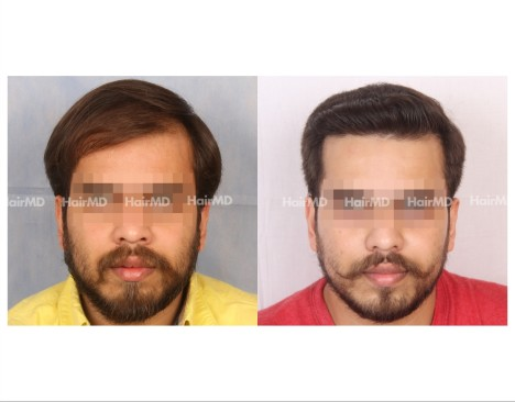 60Hair-Transplant-male-before-after-4000-hair-grafts-6