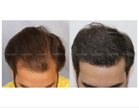 61Hair-Transplant-male-before-after-4000-hair-grafts-7
