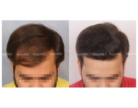62Hair-Transplant-male-before-after-4000-hair-grafts-8