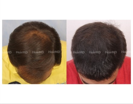 63Hair-Transplant-male-before-after-4000-hair-grafts-9