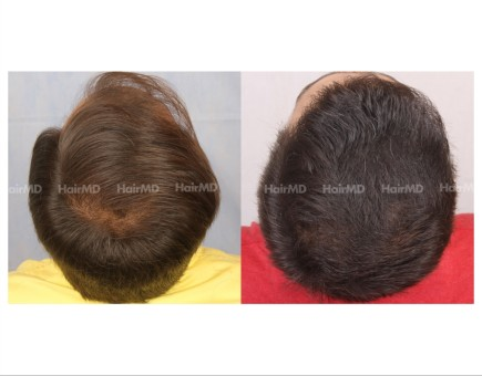 64Hair-Transplant-male-before-after-4000-hair-grafts-10
