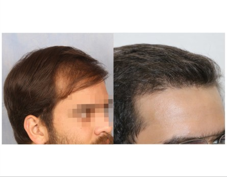 65Hair-Transplant-male-before-after-4000-hair-grafts-11