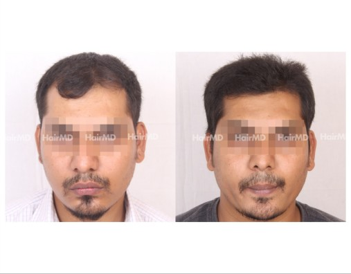 66Hair-Transplant-male-before-after-3000-hair-grafts-6