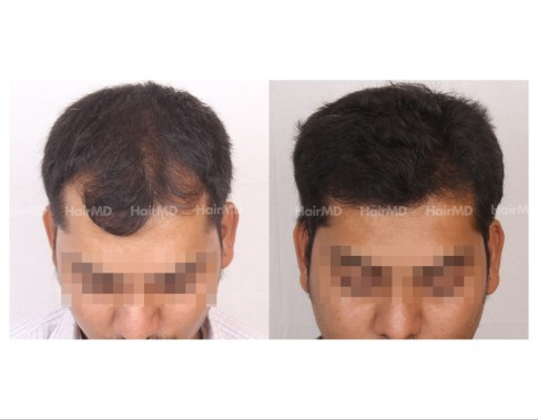 67Hair-Transplant-male-before-after-3000-hair-grafts-7