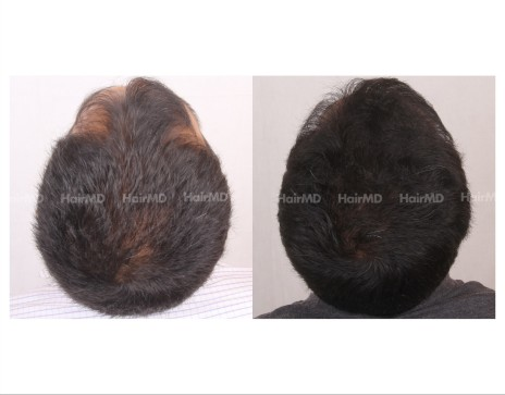 68Hair-Transplant-male-before-after-3000-hair-grafts-8