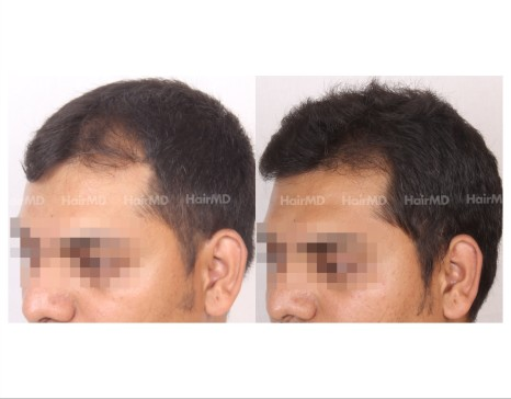 69Hair-Transplant-male-before-after-3000-hair-grafts-9
