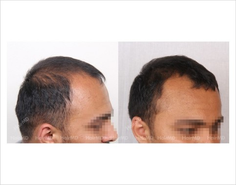 6Hair-Loss-male-before-and-after-result-9