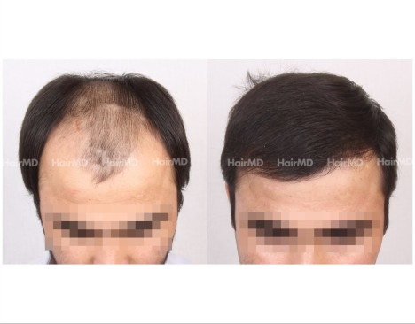 6Hair-Transplant-male-before-after-5000-hair-grafts-1