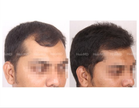 70Hair-Transplant-male-before-after-3000-hair-grafts-10