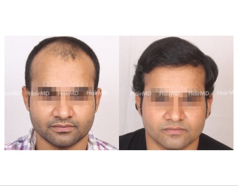 71Hair-Transplant-male-before-after-6000-hair-grafts-34