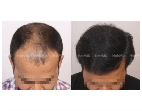 72Hair-Transplant-male-before-after-6000-hair-grafts-35