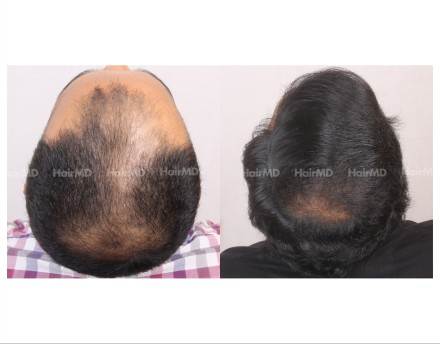 73Hair-Transplant-male-before-after-6000-hair-grafts-36