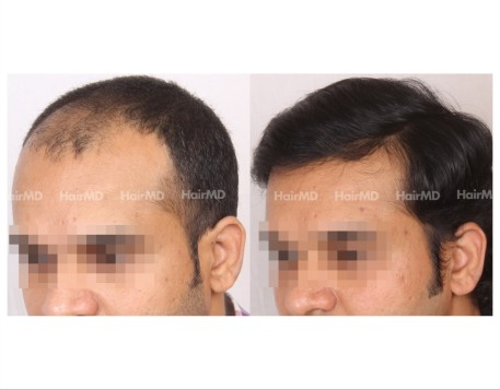 74Hair-Transplant-male-before-after-6000-hair-grafts-37