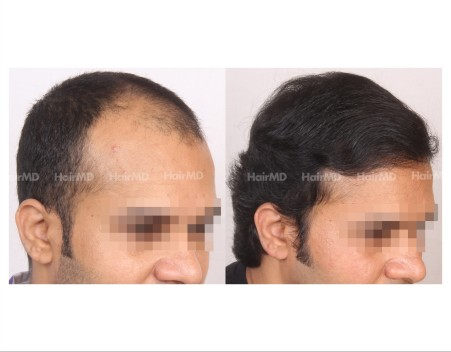 75Hair-Transplant-male-before-after-6000-hair-grafts-38