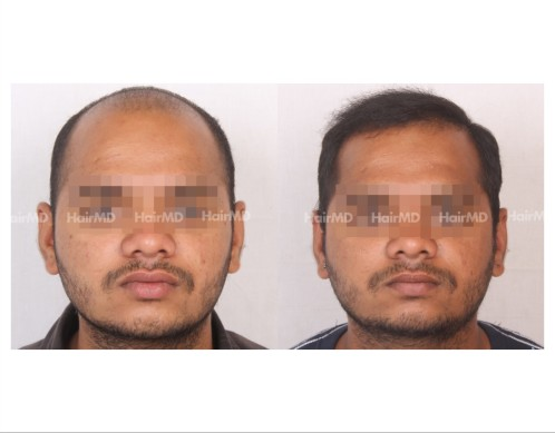 76Hair-Transplant-male-before-after-4000-hair-grafts-12