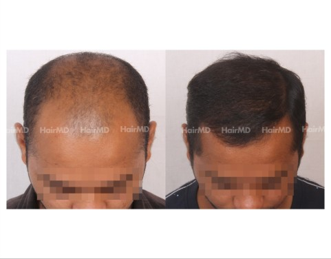 77Hair-Transplant-male-before-after-4000-hair-grafts-13