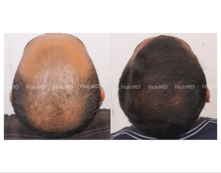 78Hair-Transplant-male-before-after-4000-hair-grafts-14