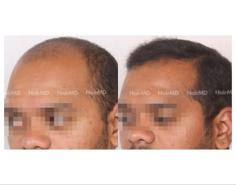 79Hair-Transplant-male-before-after-4000-hair-grafts-15