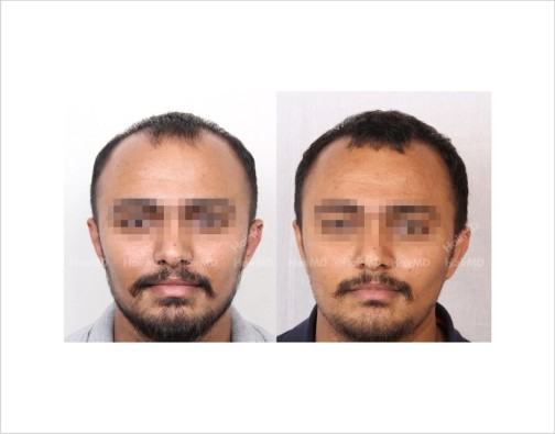 7Hair-Loss-male-before-and-after-result-8