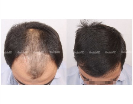 7Hair-Transplant-male-before-after-5000-hair-grafts-2