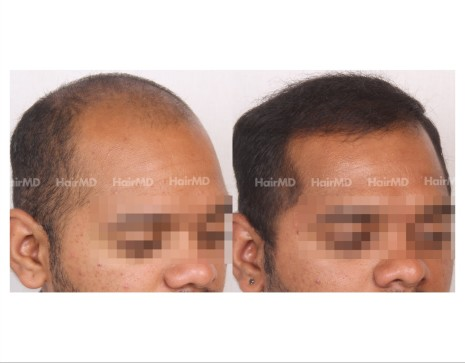 80Hair-Transplant-male-before-after-4000-hair-grafts-16