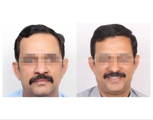 81Hair-Transplant-male-before-after-3000-hair-grafts-14