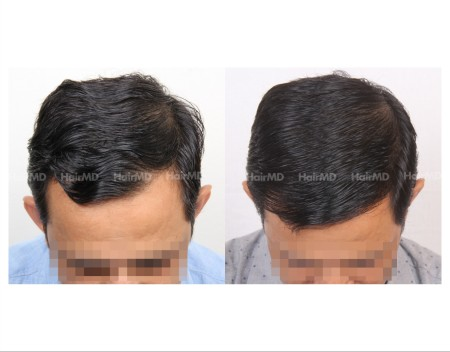 82Hair-Transplant-male-before-after-3000-hair-grafts-15