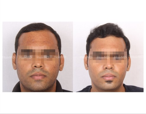 83Hair-Transplant-male-before-after-3000-hair-grafts-11