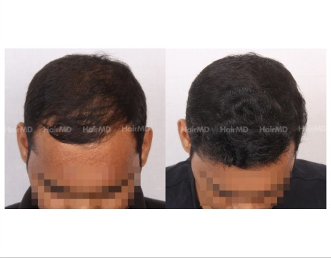 84Hair-Transplant-male-before-after-3000-hair-grafts-12