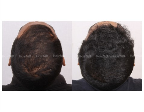 85Hair-Transplant-male-before-after-3000-hair-grafts-13