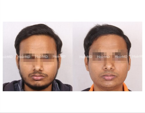86Hair-Transplant-male-before-after-5000-hair-grafts-6