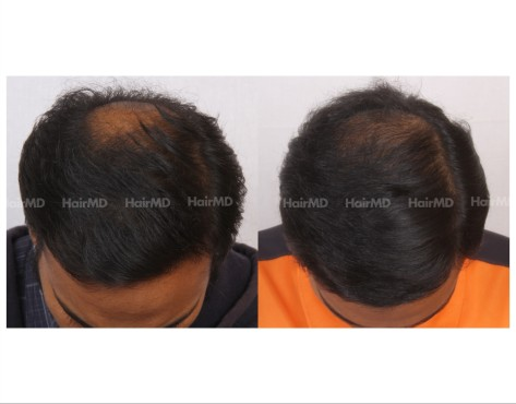 87Hair-Transplant-male-before-after-5000-hair-grafts-7