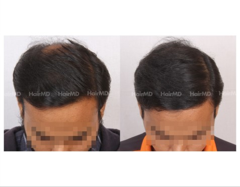 88Hair-Transplant-male-before-after-5000-hair-grafts-8