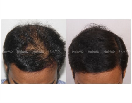 89Hair-Transplant-male-before-after-5000-hair-grafts-9