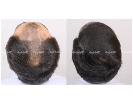 8Hair-Transplant-male-before-after-5000-hair-grafts-3