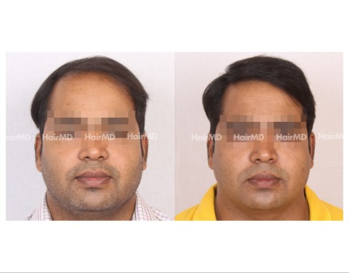 92Hair-Transplant-male-before-after-6000-hair-grafts-29
