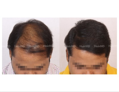 93Hair-Transplant-male-before-after-6000-hair-grafts-30
