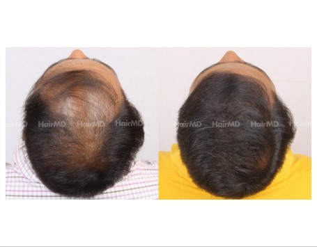 94Hair-Transplant-male-before-after-6000-hair-grafts-31
