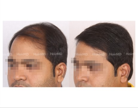 95Hair-Transplant-male-before-after-6000-hair-grafts-32