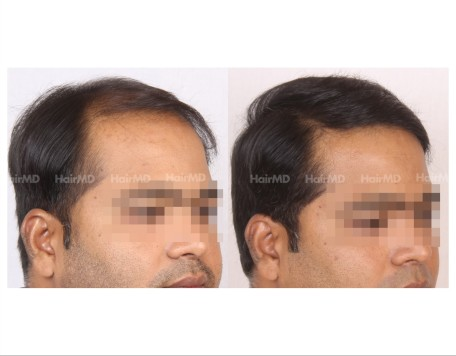 96Hair-Transplant-male-before-after-6000-hair-grafts-33