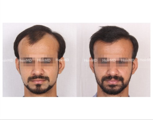 97Hair-Transplant-male-before-after-4000-hair-grafts