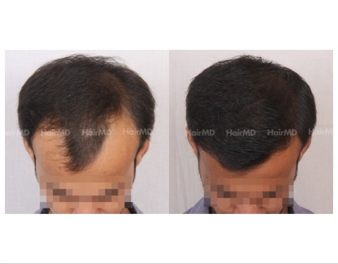 98Hair-Transplant-male-before-after-4000-hair-grafts-1