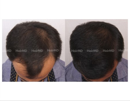 99Hair-Transplant-male-before-after-4000-hair-grafts-2