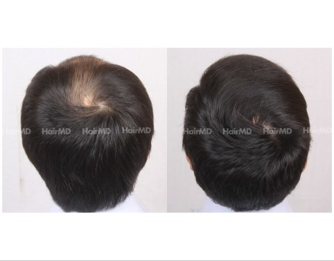 9Hair-Transplant-male-before-after-5000-hair-grafts-4