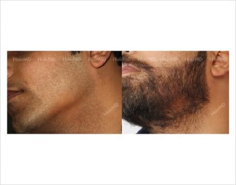 Alopecia-Areata-male-beard-before-after-1