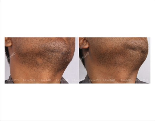 Alopecia-Areata-male-beard-before-after-8