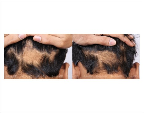 Alopecia-Areata-male-scalp-before-after-3