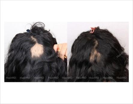 Alopecia-areata-before-after-female-10