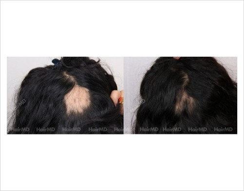 Alopecia-areata-before-after-female-11